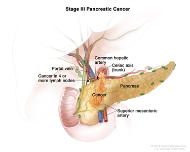 Stage III pancreatic cancer; drawing shows cancer in the pancreas, common hepatic artery, and portal vein. Also shown are the celiac axis (trunk), bile duct, pancreatic duct, duodenum, and superior mesenteric artery.