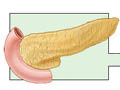 Picture of pancreas transplant