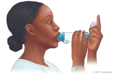 Person placing spacer mouthpiece into mouth.