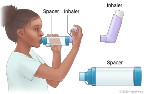 Child using inhaler with attached spacer, with end of spacer in mouth while holding spacer with one hand and inhaler with other.
