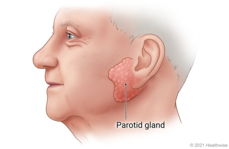 Side view of person's face, showing parotid gland in front of and slightly below ear.