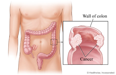 Cancer in the wall of the descending colon