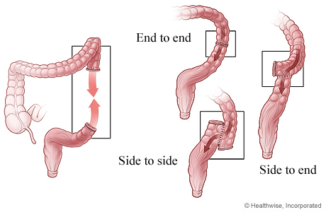 Ways the cut ends of the colon may be reattached