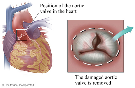 Location of aortic valve in the heart with detail of damaged valve.