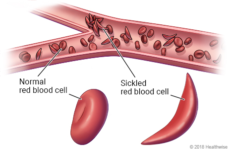 Inside view of red blood cells in blood vessel, with close-up of normal and sickled red blood cells