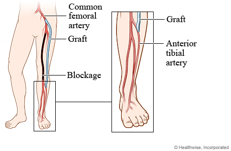 Blocked artery and position of graft in femoral-tibial bypass surgery