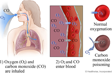 Picture of what happens in blood cells during carbon monoxide poisoning