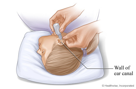 How to insert eardrops safely
