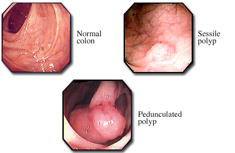 Photos of colon polyps and a normal colon