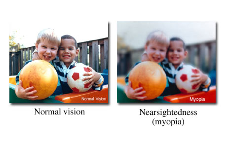 Photo as seen with normal vision and nearsighted vision