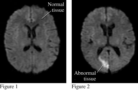 MRI images of a stroke MRI