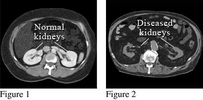 CT scan showing damaged kidneys