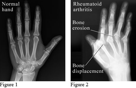 X-ray images showing a normal hand and a hand with rheumatoid arthritis