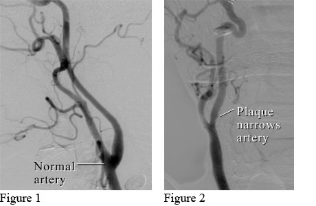 Images of a normal neck artery and a narrowed neck artery
