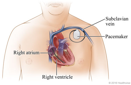 Picture of a permanent pacemaker and where it is placed
