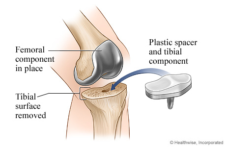 Picture of knee replacement surgery: Tibial component