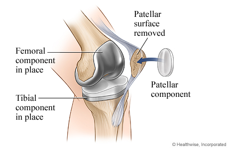 Picture of knee replacement surgery: Patellar component