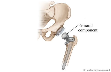 Picture of hip replacement: Step 3 - Femoral component is placed