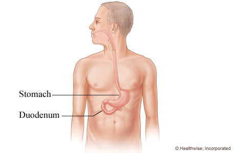 Picture of the duodenum and its location in the body