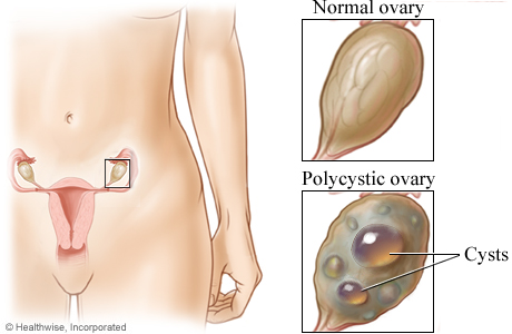 Picture of a normal ovary and a polycystic ovary