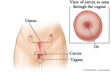 Picture of the cervix
