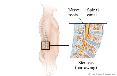 Picture of lumbar spinal stenosis