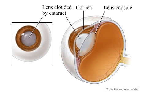 Cutaway picture of the eye showing the lens clouded by a cataract
