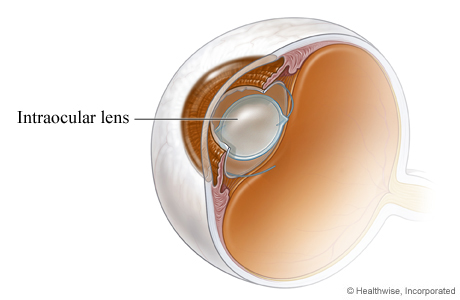 Picture of an intraocular lens in place after cataract surgery