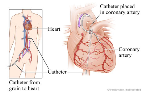 Picture of how a catheter is moved into a coronary artery that has blockage