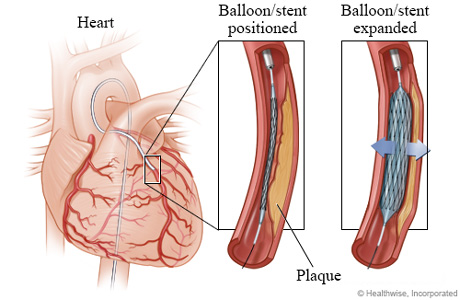 Picture of positioning and expanding a balloon and stent in a coronary artery
