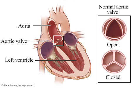 Picture of the aortic valve, open and closed