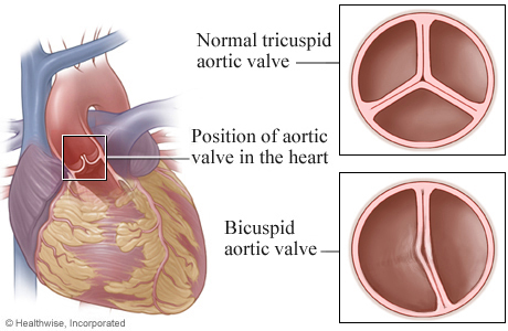 Picture of a normal tricuspid aortic valve and a bicuspid aortic valve