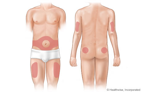 Picture of areas on the body where insulin is injected