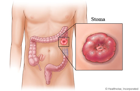 A stoma for a colostomy