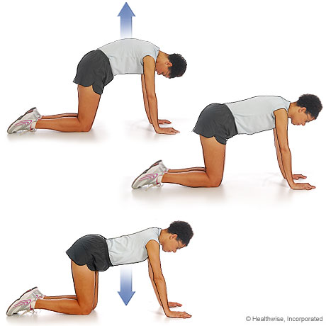 Picture of back stretches for ankylosing spondylitis