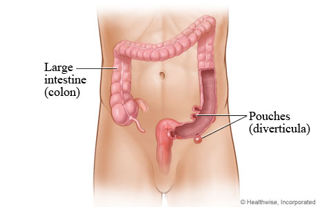 Pouches (diverticula) in the large intestine (colon)