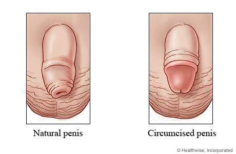 Picture of a natural penis and a circumcised penis