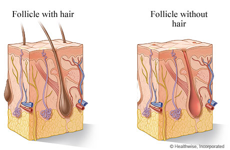 Picture of hair follicle with and without hair