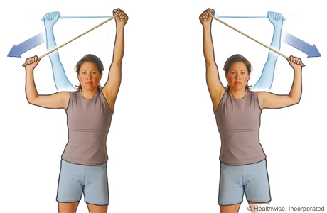 Picture of the side pull exercise