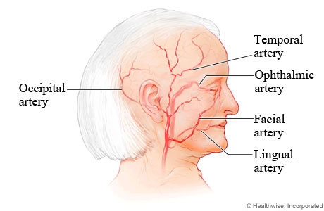 Picture of arteries commonly affected by giant cell arteritis