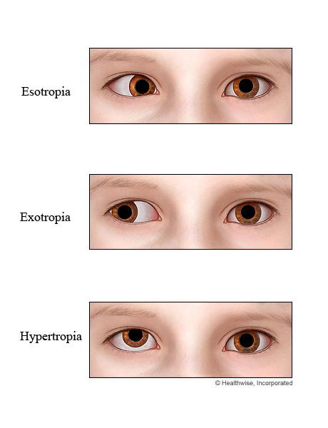 Picture of strabismus
