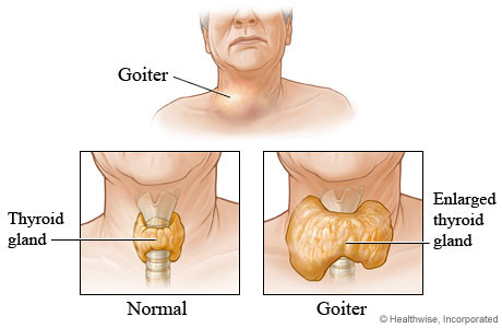 Picture of a normal-sized thyroid and a goiter