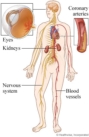 Picture of body areas affected by diabetes