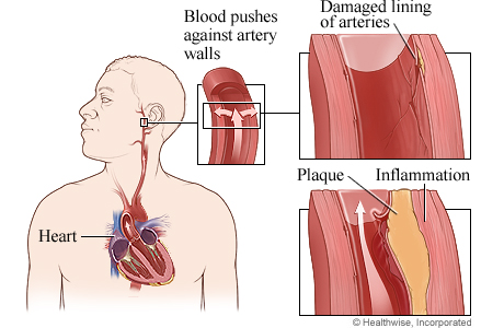 Picture of how high blood pressure damages arteries