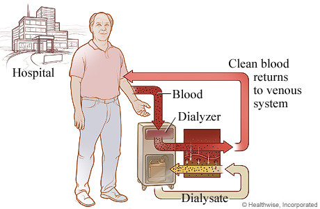 Picture of the process of hemodialysis
