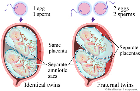 Picture of twin pregnancy types