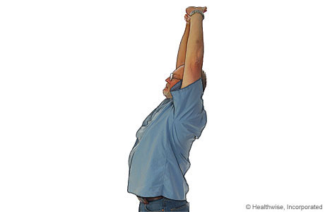 Picture of overhead stretch to ease shoulder aches and fatigue