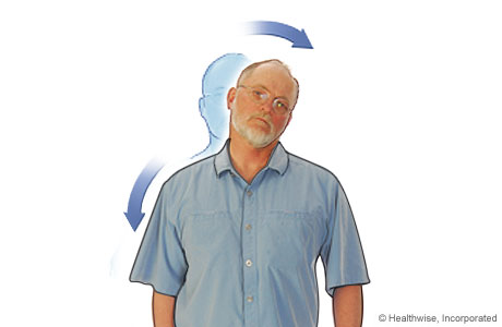 Picture of neck stretch to ease neck aches and fatigue