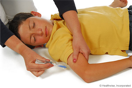 Photo of pinching a fold of skin at the injection site