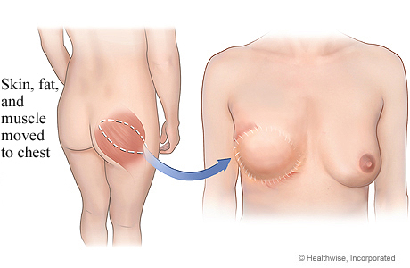 Picture of gluteal free flap for breast reconstruction